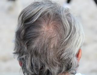 Учени откриха защо косата ни побелява от стреса