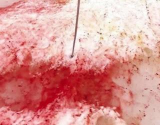 Защо снегът в Антарктида стана кървавочервен?