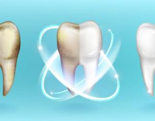 Странни факти за зъбите, които всъщност са верни