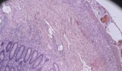 Масларова: Профилактиката на рака на гърдата да бъде издигната в култ