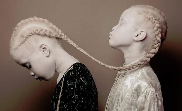 Близначките албиноси, които поразиха модния свят
