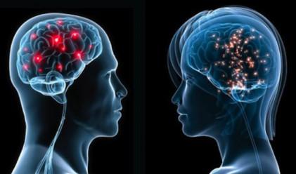 Мозъците на жените стареят по-бързо от тези на мъжете