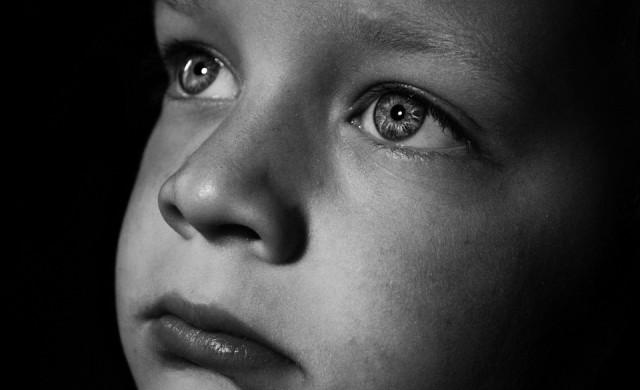 Албиносите на Танзания: избивани още при раждането си